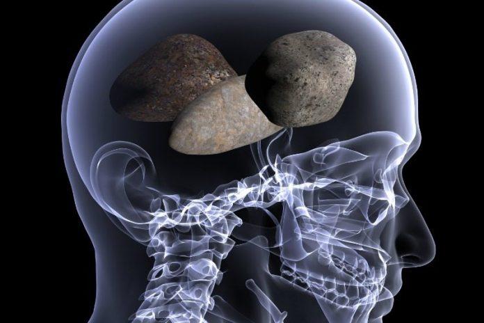 Head of Stones