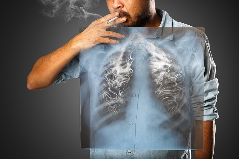 x-ray-of-smoker
